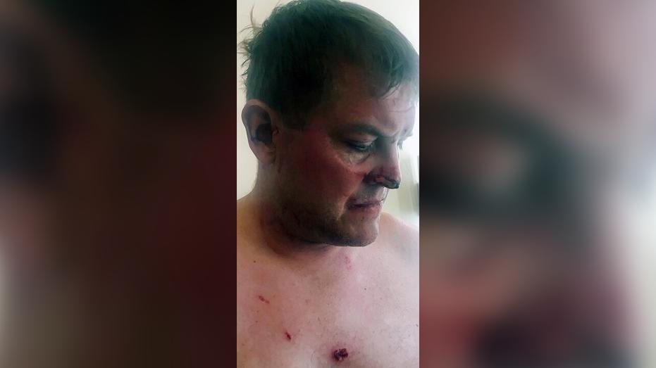Anguilla pursues warrant for USA  man involved in hotel death