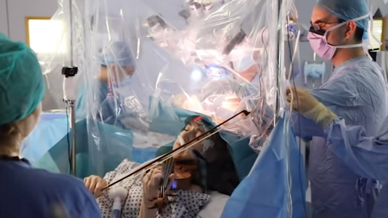 Violinist plays while surgeons remove her brain tumor
