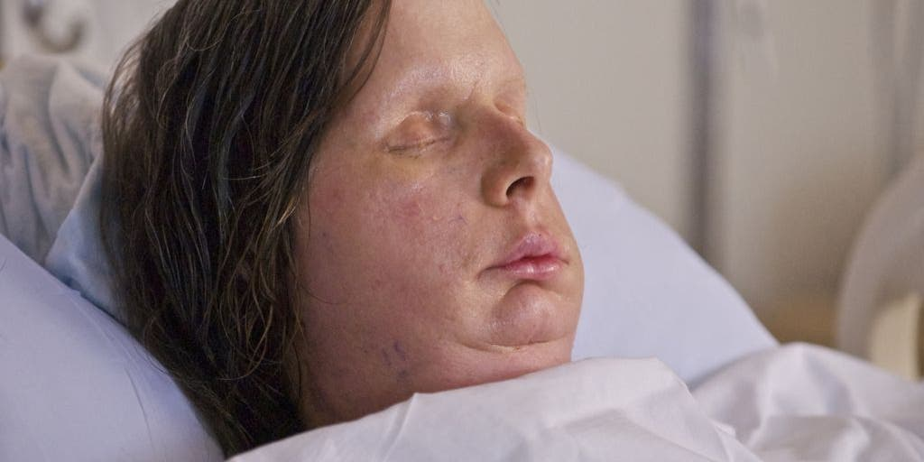 Woman Who Had Face Transplant Following Chimp Attack Opens Up in
