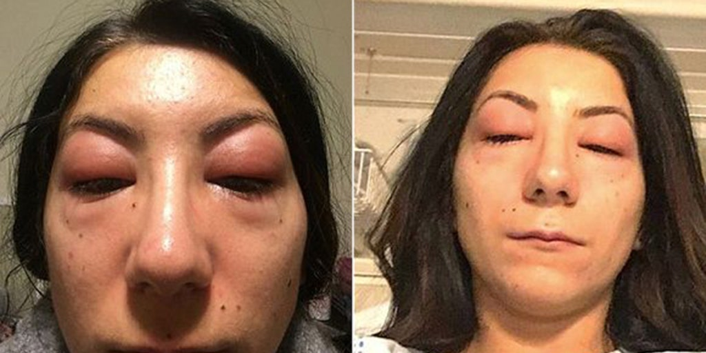 89d3f697cdc Woman warns others about eyelash extension dangers after severe allergic  reaction | Fox News