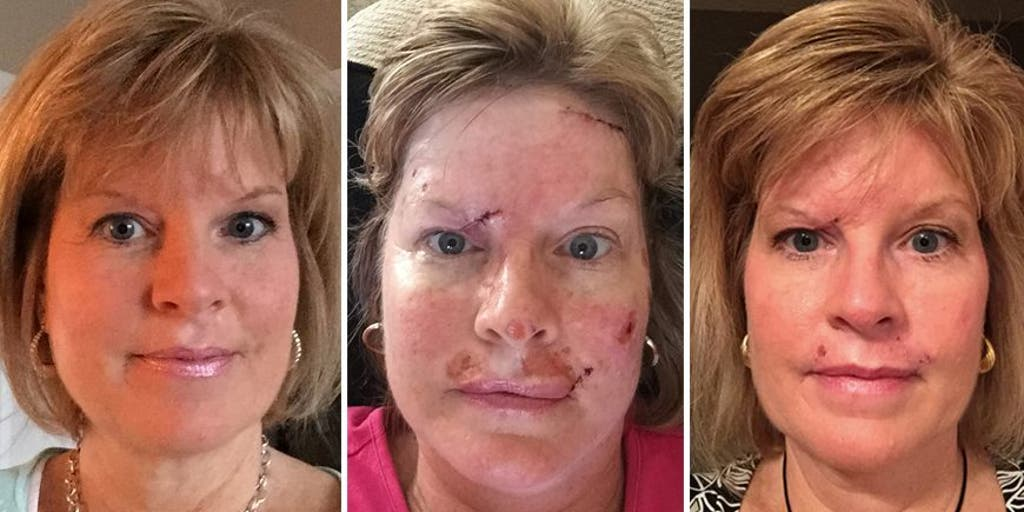 Woman Shares Skin Cancer Photos To Show Effects Of Tanning Habit Fox News
