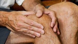 Tiny knee bone three times more prevalent than 100 years ago: study