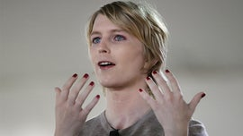 Chelsea Manning posts photo from hospital after gender reassignment surgery