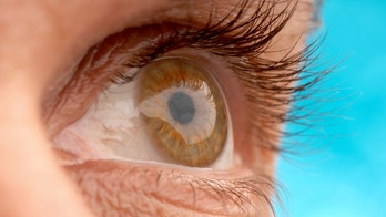 Rare parasite causes college student's eye to swell to size of golf ball