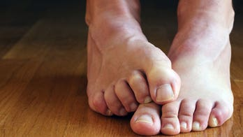 6 simple cures for smelly feet