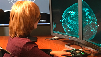 A better mammogram? Huge study putting 3-D scans to the test