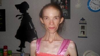 Anorexic woman is given choice to seek out-of-state medical treatment or die