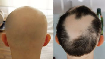 Arthritis drug helps people regrow hair, more cases show