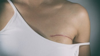Breast cancer symptoms to look out for