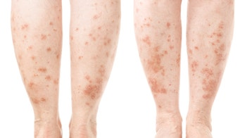 Experimental psoriasis treatment shows promise