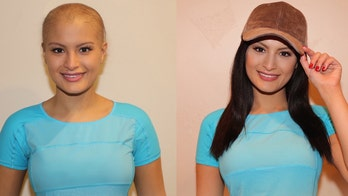 Cancer patient starts 'cap wigs' initiative to fight emotional pain of hair loss