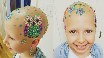 Girl with hair loss condition puts unique twist on 'Crazy Hair Day'