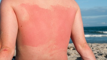 The best home remedies for sunburn