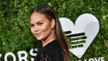 Chrissy Teigen shares photo of son wearing corrective helmet, sparks sweet responses from moms