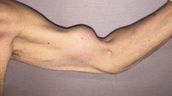 Why a man's arm looks like Popeye's