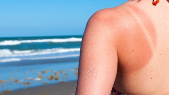 Here's how damaging a bad sunburn can be