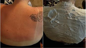 Texas mom's viral sunburn hack works, but it's not 'magical cure,' dermatologists warn