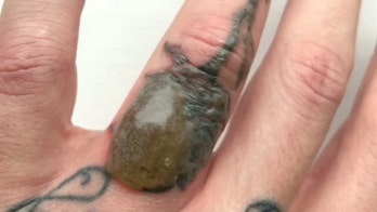 Man develops blister on finger during tattoo removal procedure