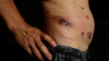 Flesh-eating ulcer 'epidemic' in Australia stumps doctors
