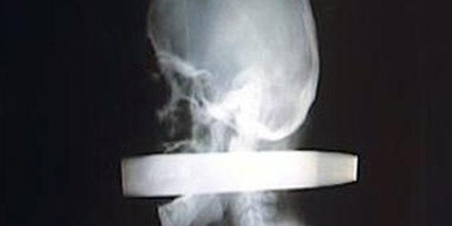 Andrew Linn's X-ray