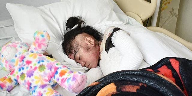 Destiny was born with a rare condition that causes her fragile skin to blister.