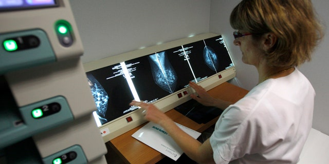 A radiologist examines breast X-rays after a cancer prevention medical check-up.