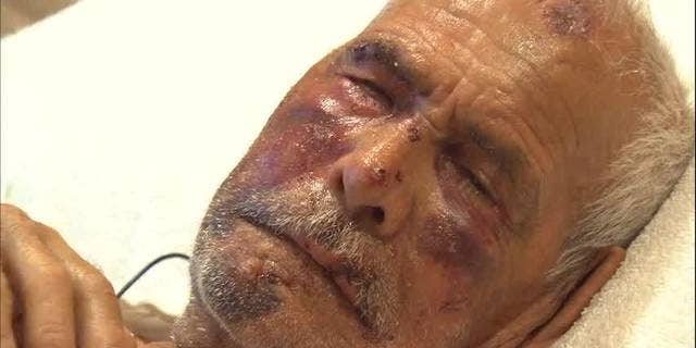 Rodolfo Rodriguez, 92, was beaten in the face with a brick and stomped on during an attack on July 4.  (Fox 11)