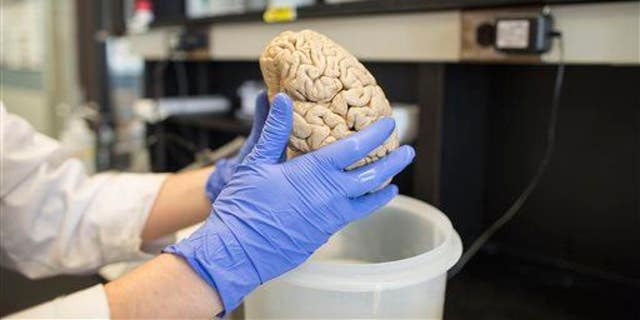 In this July 29, 2013 photo, a researcher holds a human brain in a laboratory at Northwestern University's cognitive neurology and Alzheimer's disease center in Chicago.
