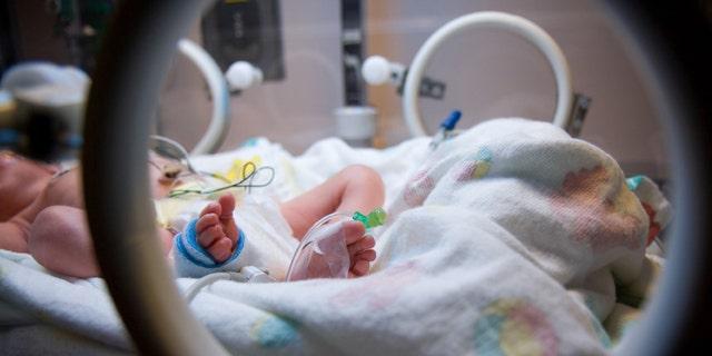 A premature infant in the NICU.