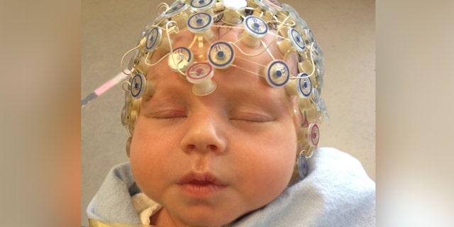 Baby undergoing electroencephalography.