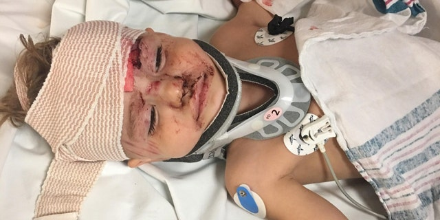 Kayden Blodgett, 2, was injured after a Tennessee deputy allegedly hit him with their cruiser, the boy's family says.