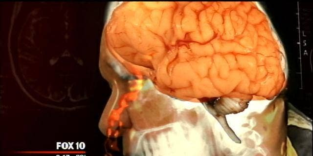 An image of Joe Nagy's brain, which was leaking fluid through his nose.