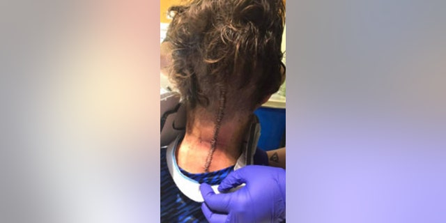 Surgeons made a long incision on the back of his neck, using a skull plate and spinal screws and rods to correct the fracture.