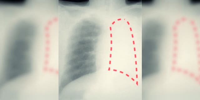 The area outlined in red in this X-ray shows the patient's damaged, shrunken lung, after being blocked by a pen cap for 20 years. (Central European News)