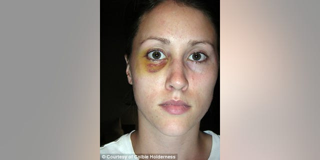 Photos emerged showing ex-wife Colbie Holderness with a black eye.