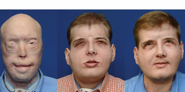"""Patrick Hardison is """"thriving""""  one year after the most extensive face transplant ever performed. From left to right, Hardison before surgery, five months after surgery, and one year after surgery."""