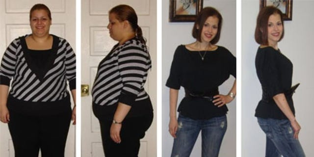 Jassira before and after her duodenal switch.