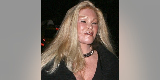 "This New York socialite is known for leading an extravagant lifestyle-- including spending huge sums of money on countless plastic surgeries. Sadly, Jocelyn probably wishes she could buy her old face back. <a target=""_blank"" href=""http://www.x17online.com/gallery/view_gallery.php?gallery=Wildestein091409_X17"">See more photos of Jocelyn at X17online.com.</a>"