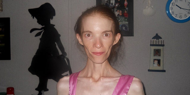 Katrina Howard, 25, who weighed 58 pounds, was told that she would have to travel out of Georgia if she wanted to receive treatment for her anorexia.