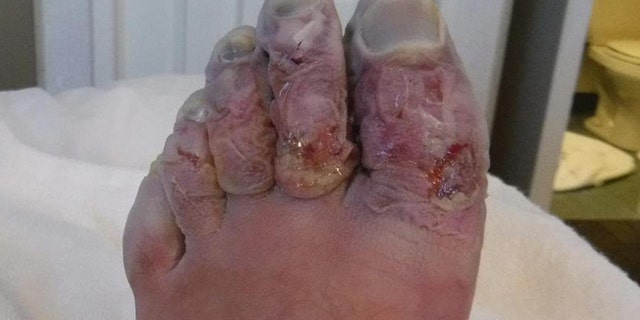 Three of Griffith's toes needed to be amputated following the Yukon Arctic Race in February.