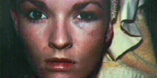 Nicole Brown Simpson is seen bruised and battered in this photograph that was shown to the jurors in the OJ Simpson trial February 6. Nicole's sister Denise-Brown testified that she took these picture to document injuries at the hands OJ Simpson.