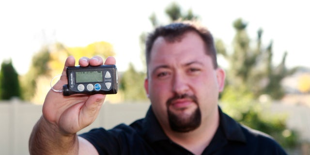 Jay Radcliffe shows off a Medtronic Corp insulin pump at his home in Meridian, Idaho.