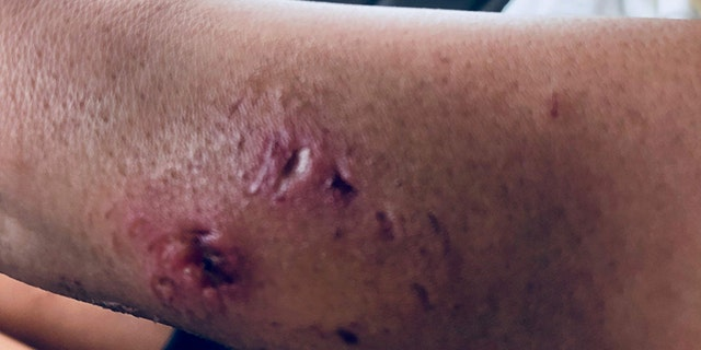 The 19-year-old said it's been a journey treating the wound to have it heal completely.