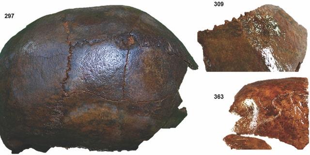 Examples of blunt force trauma on the skulls discovered at Kanaljorden. (Photograph: Sara Gummesson and Fredrik Hallgren/Antiquity)