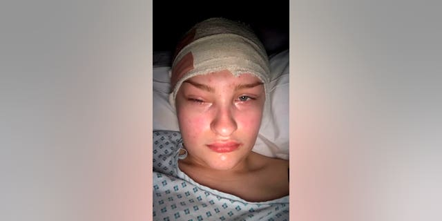 Following a craniotomy, Megan Barker's eyes swelled shut.  The tumor surgeons removed is suspected to be a mass of calcium.