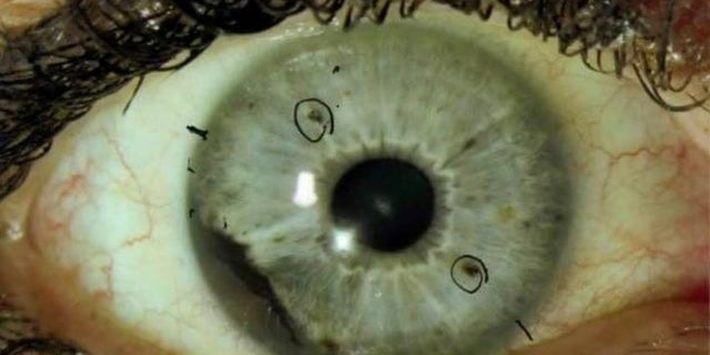 Ocular melanoma can be detected by people who have spots in their iris.