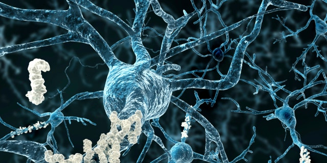 Amyloid plaques are pictured on neurons.