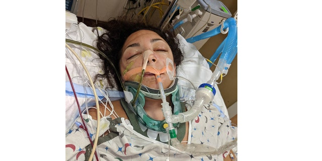 This photo of State Rep. Katie Arrington was taken the day after the head-on collision.