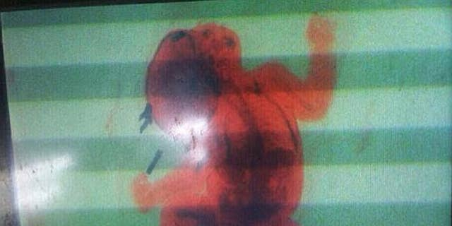 Image from security X-ray scanner at Ninoy Aquino International Airport in the Philippines shows 2-month-old infant. The baby's mother tried to smuggle her son in a backpack through security before officials stopped her.