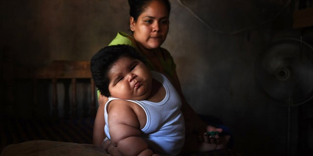 His mother said he was born weighing around 8 pounds, but that they noticed his rapid weight gain when he was about one month old.